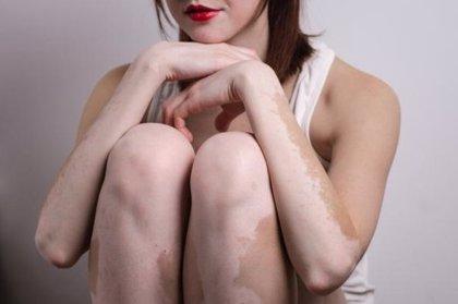"""Una crema en fase de investigación es """"extremadamente efectiva"""" en el tratamiento del vitiligo"""