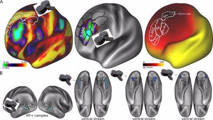 Un algoritmo predice qué pacientes con depresión responderán al 'electroshock'