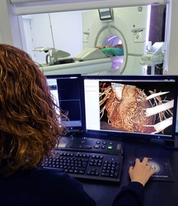 Tomografía computarizada (TAC)