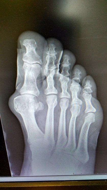 Los avances en cirugía permiten que los pacientes operados de juanetes caminen desde el primer día y con poco dolor