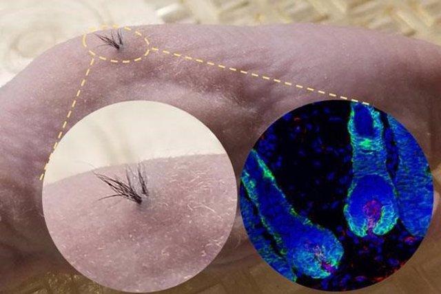 Crecimiento de pelo en ratones desnudos transplantados con células de papila dérmica derivadas de iPSC humanas que se combinaron con células epiteliales de ratón dentro de un andamio biodegradable. Inserción izquierda: vista exterior ampliada. Inserción