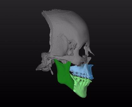 Estas prótesis impresas en 3D ayudarán a regenerar los huesos de la mandíbula (y se fabricarán en Galicia)