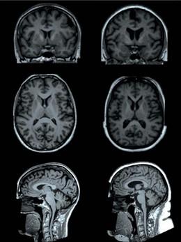 Resonancias magnéticas del cerebro