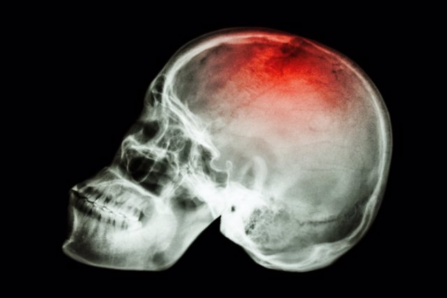 "X-ray skull lateral with ""Stroke"""