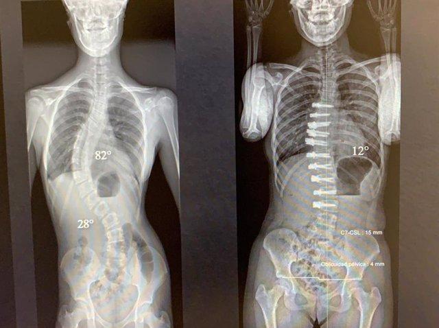 Pionera técnica quirúrgica para pacientes con escoliosis idiopática
