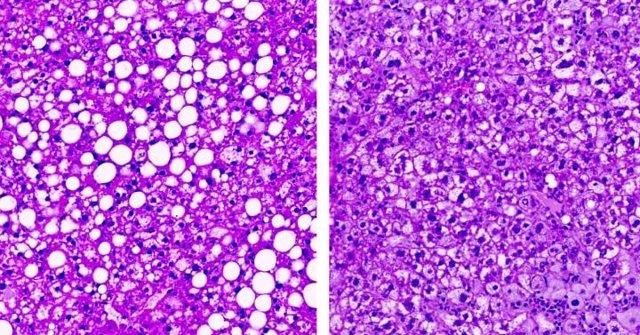 (Izquierda) Hígado Graso En Ratón Obeso. (Derecha) Hígado En Ratones En Los Que Se Redujeron Las Ceramidas Mediante La Inactivación De Una Enzima, La Dihidroceramida Desaturasa 1, Un Objetivo Que Podría Usarse Para Desarrollar Nuevos Medicamentos Contra L