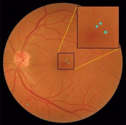 Investigadores españoles desarrollan un sistema capaz de detectar automáticamente lesiones rojas en la retina
