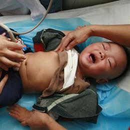 Bebé chino enfermo por la leche contaminada