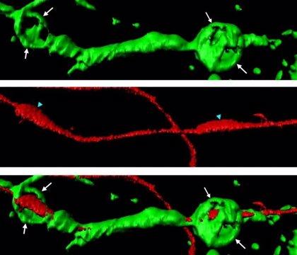 Un mecanismo podría inducir la autorreparación en el sistema nervioso central