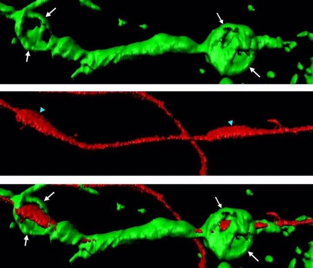 Esferas de actina (verde) envueltas alrededor de un axón seccionado (rojo)
