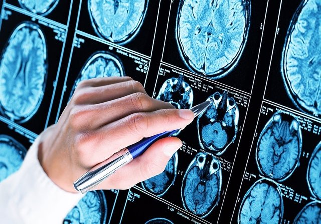 Investigadores, Alzheimer, FOTO DE ARCHIVO