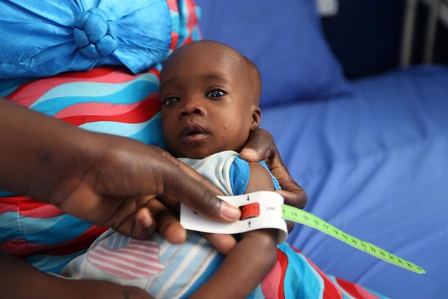 Un niño con desnutrición en Maiduguri