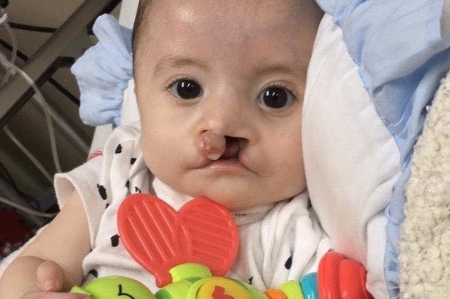 Foto de Calum, un niño de nueve meses que padece síndrome de Moebius y labio leporino