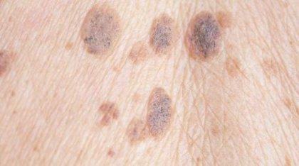 Las células grasas están involucradas en la metástasis del melanoma