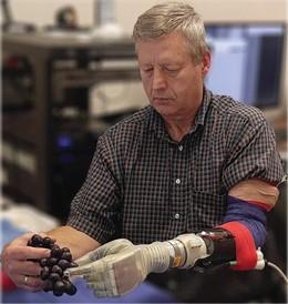 Keven Walgamott, un agente de bienes raíces de Utah que perdió su mano y parte de su brazo hace 17 años en un accidente, prueba una nueva prótesis de brazo que puede moverse con el pensamiento.
