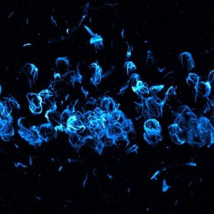 Una proteína relacionada con el Parkinson también es crucial en la reparación del ADN