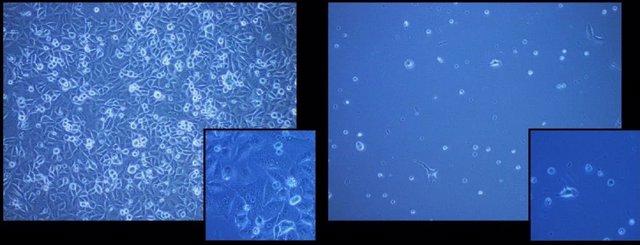 Las células congeladas con el polímero (izquierda) y sin el polímero (derecha).
