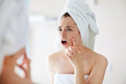 ¿Cómo se pueden hacer desaparecer las cicatrices del acné?