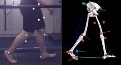 Los niños obesos tienen alteraciones biomecánicas similares a las de adultos con artritis de rodilla