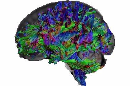 ¿Cómo son los cerebros de las personas con una excelente cultura general?