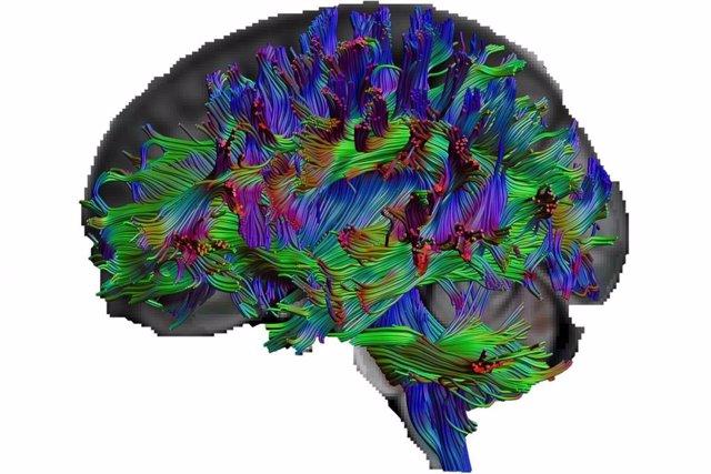 Con imagen del tensor de difusión, los investigadores pueden visualizar las vías de las fibras nerviosas del cerebro