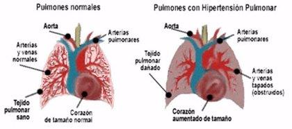Científicos españoles identifican una región del genoma implicada en la hipertensión arterial pulmonar hereditaria
