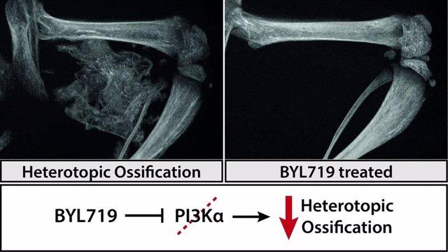 Formación ósea ectópica (izquierda) y ninguna formación ósea después del tratamiento con BYL719 (derecha).
