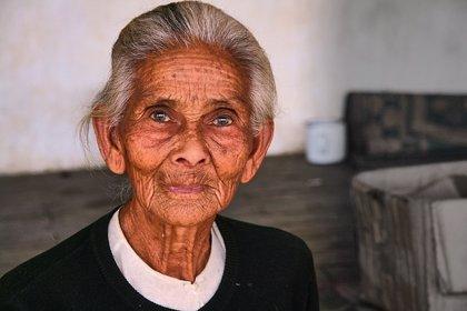 Los efectos del envejecimiento de la piel varían según el origen étnico
