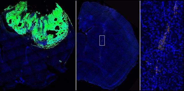 De izq a der, imagen de un cerebro de ratón con el tumor establecido normalmente; cerebro de ratón en el que se han inyectado células con la expresión de NFATc3 bloquedada, y ampliación de las pocas células tumorales localizadas en este último cerebro.