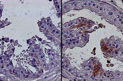 Explican en ratones por qué aumenta el riesgo de cáncer de próstata con la edad
