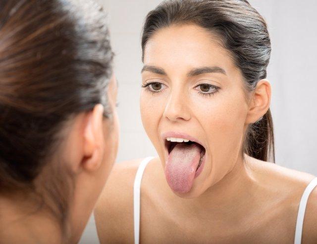 Mujer mirando la lengua en un espejo.