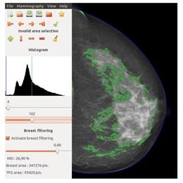 DM-Scan, un software informático de investigadores españoles que estima el riesgo de cáncer de mama