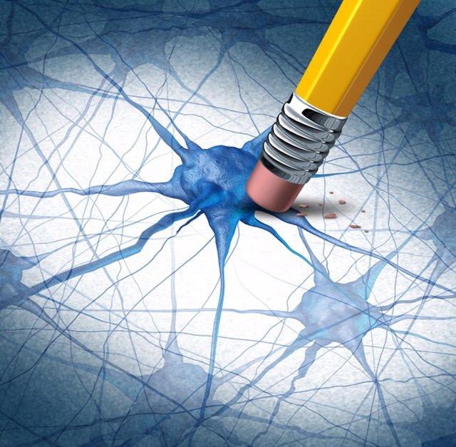 Alzheimer, neurona, enfermedad cerebrar