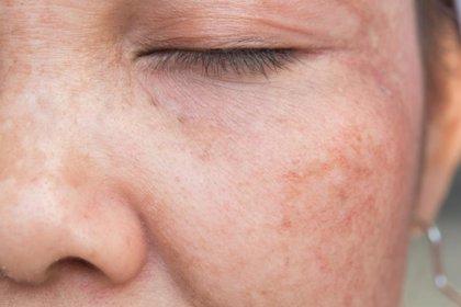 Los tratamientos más efectivos para las manchas en la piel