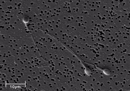 La exposición repetida al semen podría proteger parcialmente contra la infección por VIH