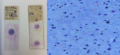 Investigadores crean el primer mapa del comportamiento de la malaria, que abre la puerta a nuevos fármacos