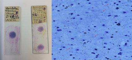 Crean el primer mapa del comportamiento de la malaria, que abre la puerta a nuevos fármacos