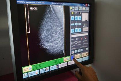 La edición genética CRISPR puede detener la progresión del cáncer de mama triple negativo
