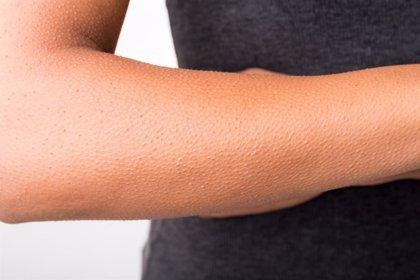 ¿Cómo percibe el frío la piel?