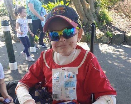Un niño de 13 años afectado por una rara enfermedad de la piel recibe más de 10.000 felicitaciones de cumpleaños