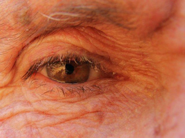 Ojo anciano, degeneración macular, hombre mayor