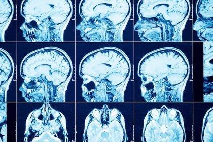 Demuestran por primera vez que los tumores cerebrales se integran en el 'cableado' del cerebro