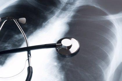 Combinar una nueva clase de fármaco con otros 2 compuestos puede reducir significativamente el cáncer de pulmón