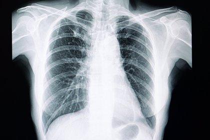 Resultado de imagen de fibrosis pulmonar