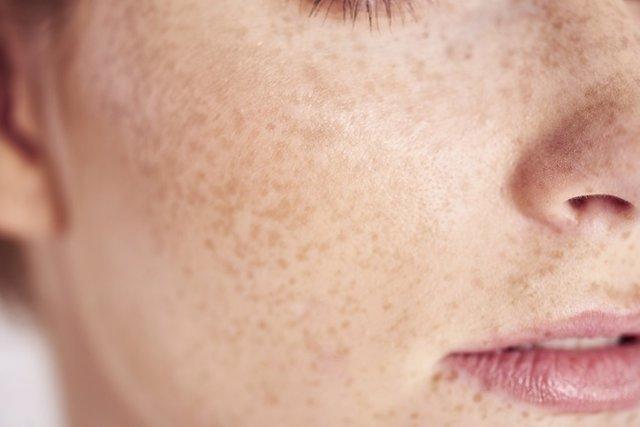 Mujer con pecas y manchas en la piel.