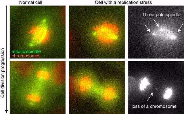 División de una célula normal (izq) y una con estrés de replicación (centro). Huso acromático en verde, cromosomas en rojo. La fila derecha detalla los errores celulares con estrés de replicación: un huso tripolar (izq) y la pérdida de un cromosoma (der)