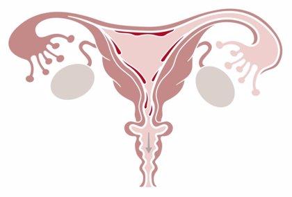 Asocian el síndrome de ovario poliquístico a problemas respiratorios