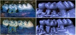 Los ratones sin gustducin desarrollan una pérdida acelerada del hueso que sostiene los dientes y una periodontitis inducida por ligadura más severa, como se muestra en la izquierda y en las imágenes de tomografía computarizada (der)
