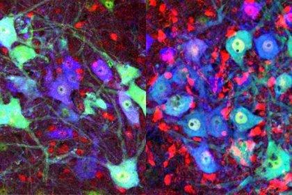 Identifican un proceso molecular que podría acelerar la recuperación de las lesiones nerviosas