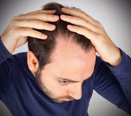 La pérdida de cabello también es culpa de la contaminación